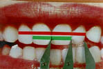 bilateral-07