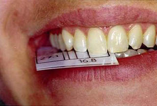proportions-teeth-smile-04