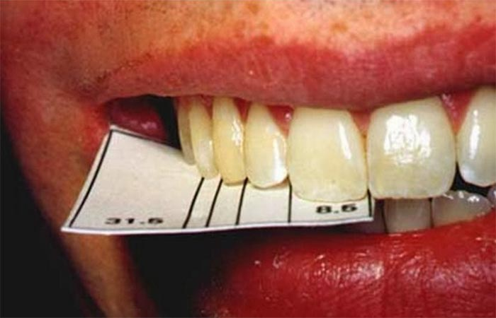 Golden Proportions in Teeth | Golden Mean Gauge